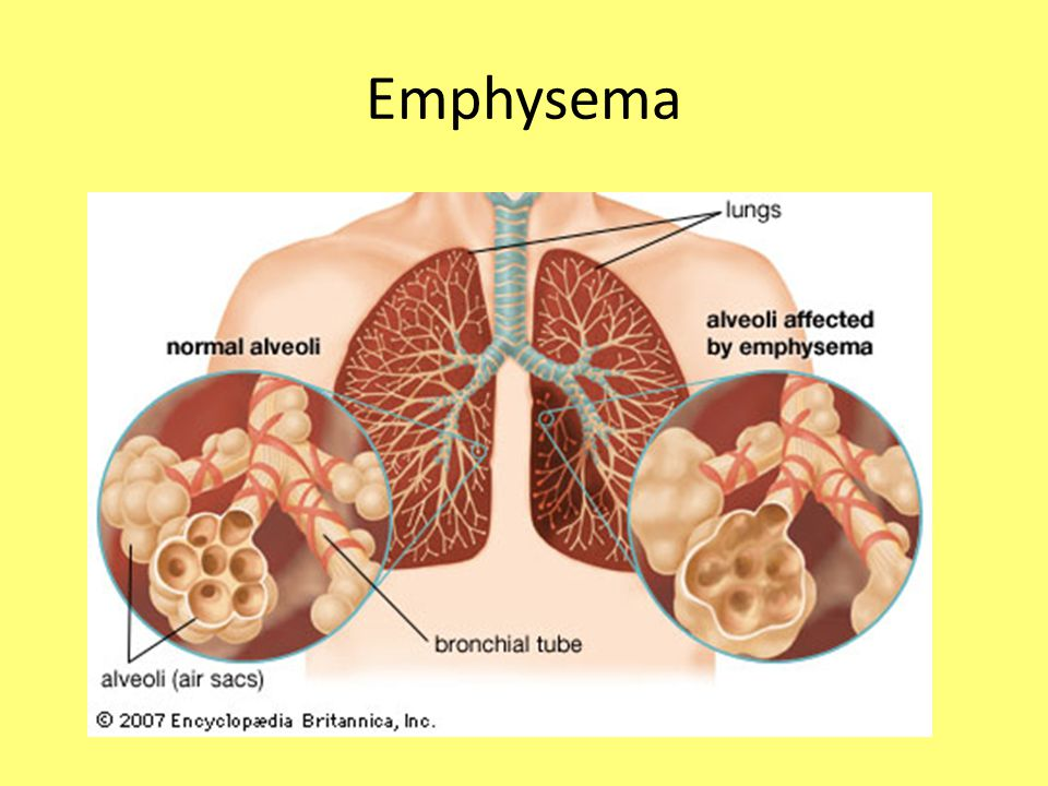 emphysema chronic obstructive pulmonary disease and