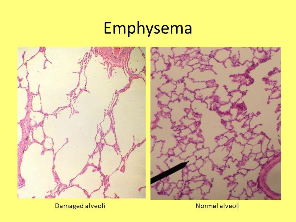 Emphysema Damaged alveoli Normal alveoli