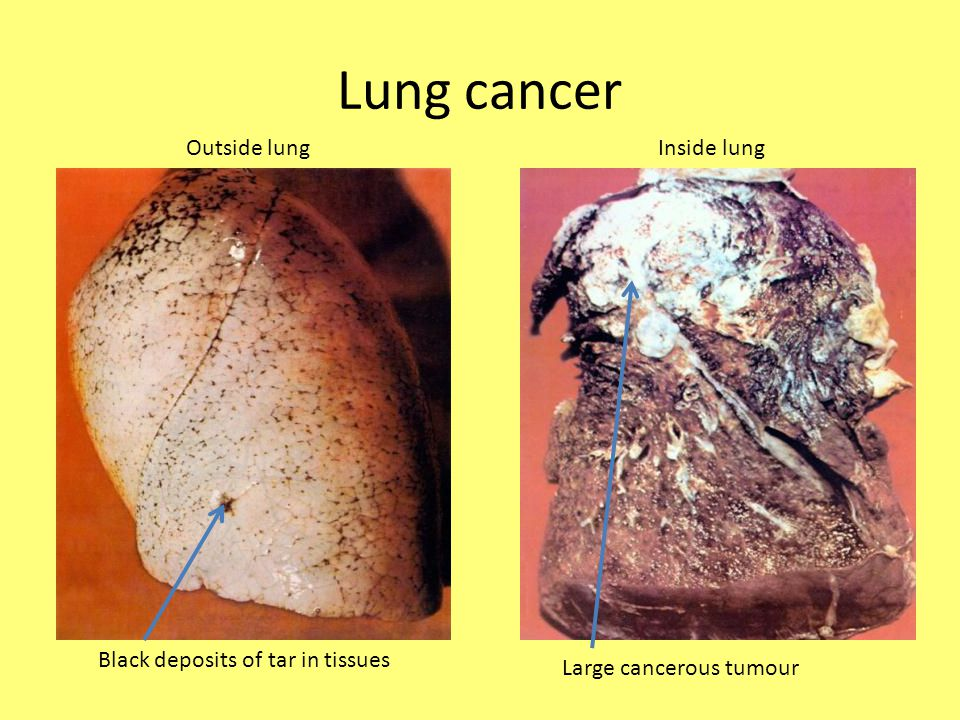 Lung cancer Outside lung Inside lung Black deposits of tar in tissues
