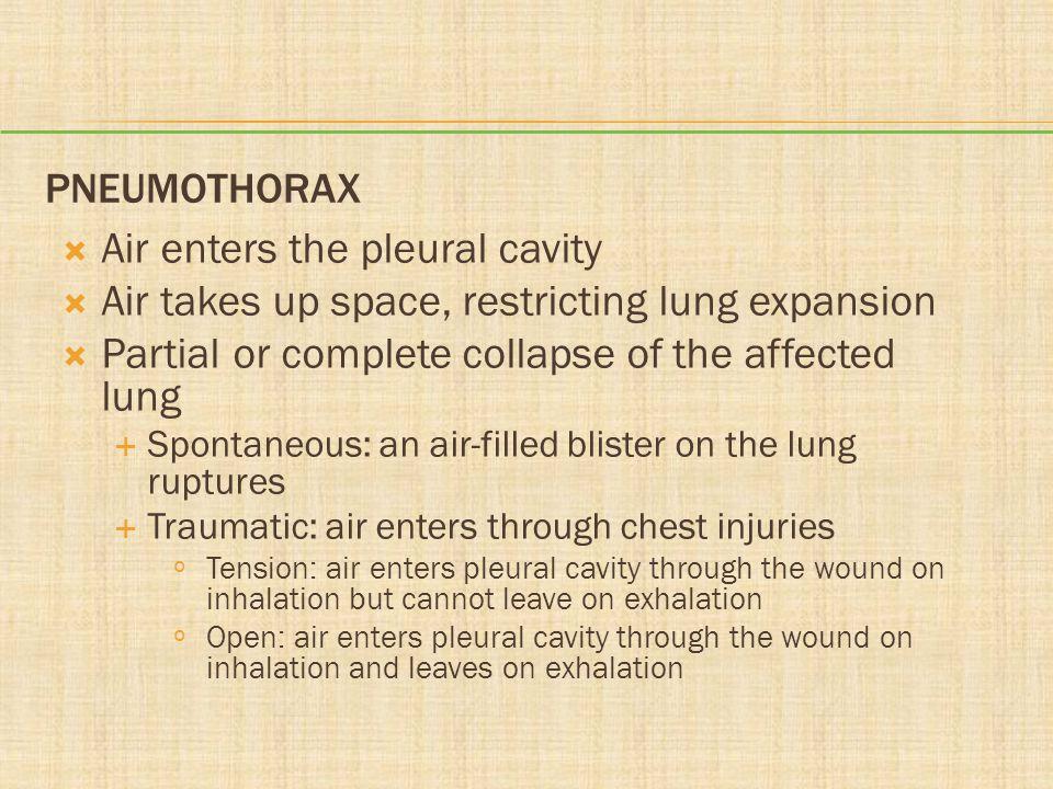 Air enters the pleural cavity