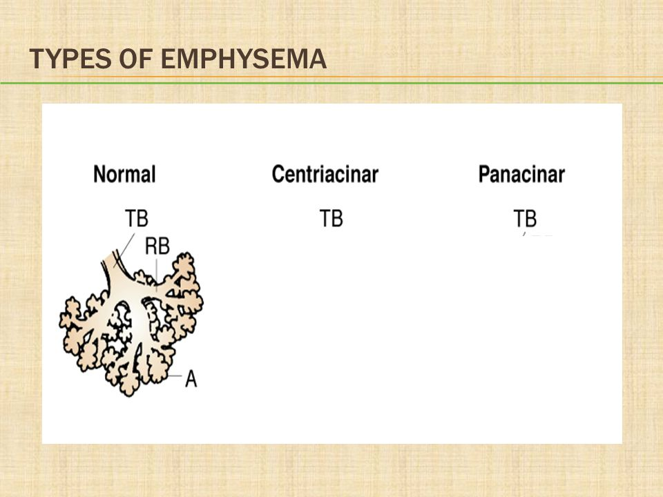Types of Emphysema
