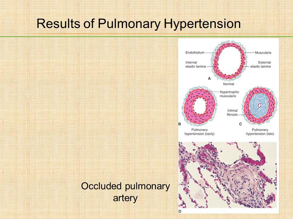 Results of Pulmonary Hypertension