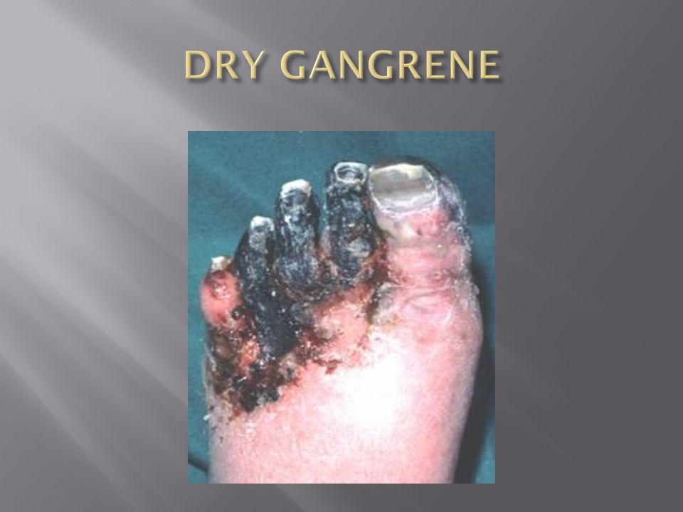 DRY GANGRENE