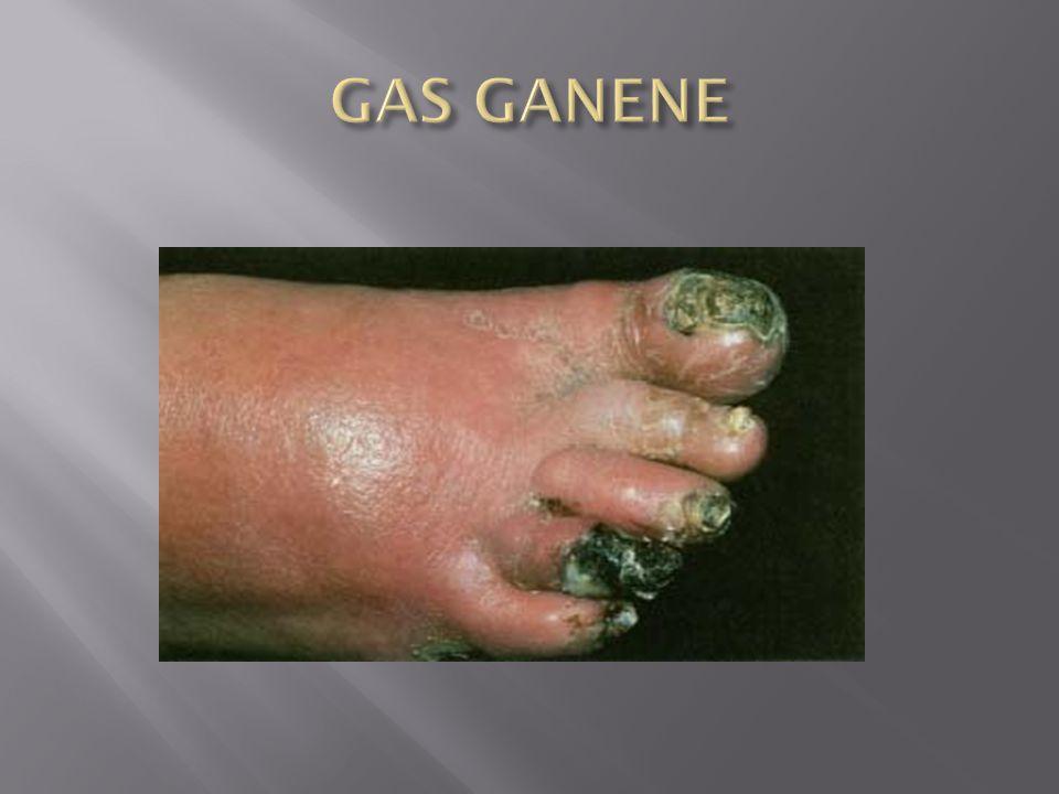 GAS GANENE