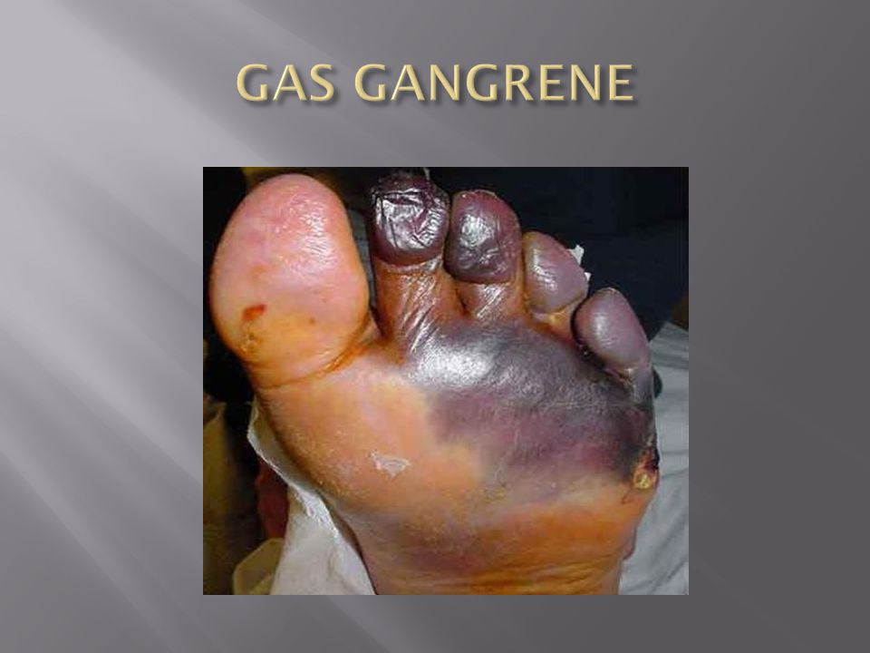 GAS GANGRENE