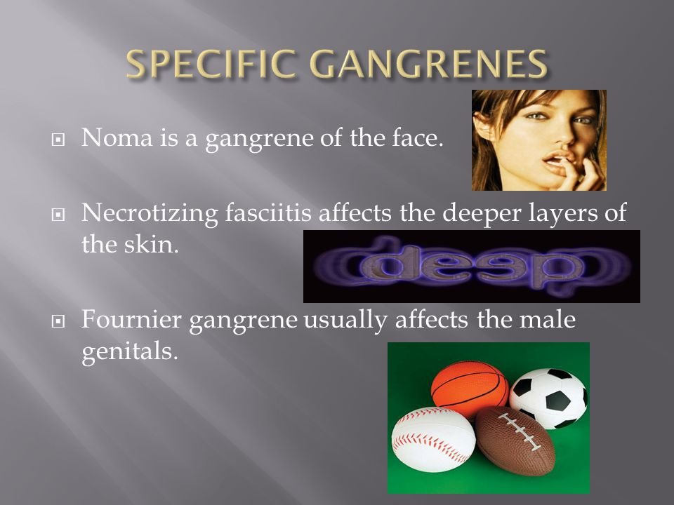 SPECIFIC GANGRENES Noma is a gangrene of the face.