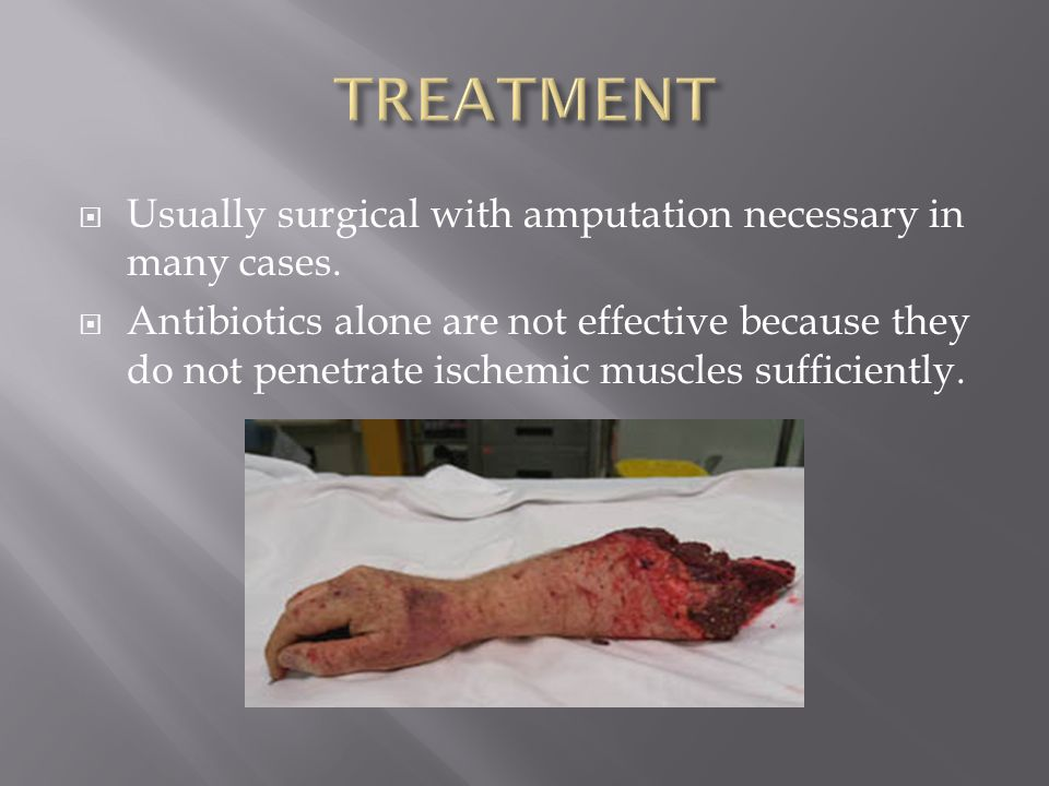 TREATMENT Usually surgical with amputation necessary in many cases.