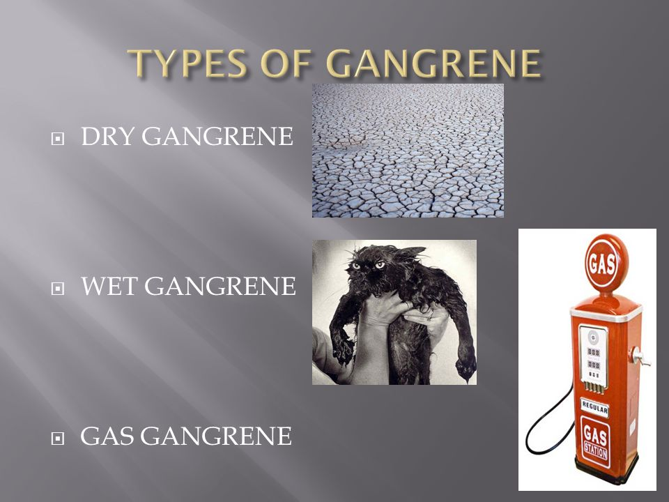 TYPES OF GANGRENE DRY GANGRENE WET GANGRENE GAS GANGRENE