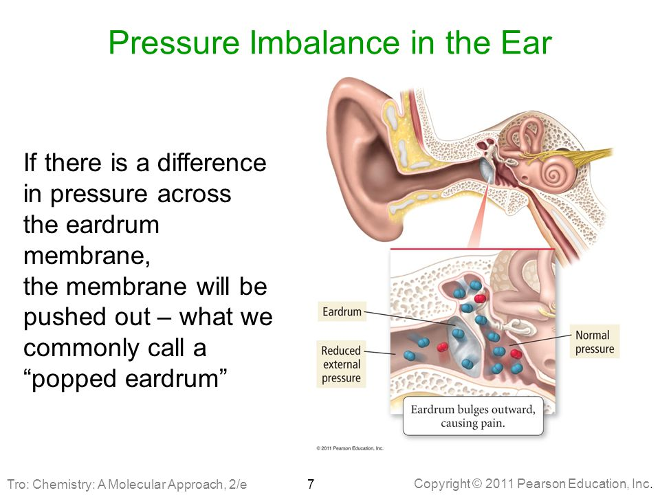 Pressure Imbalance in the Ear