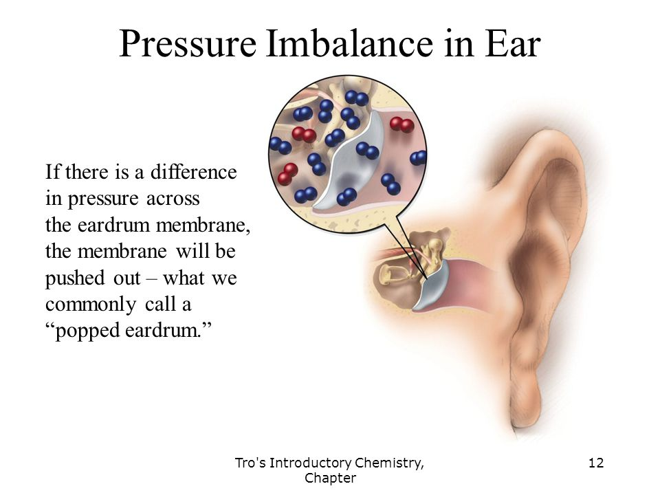 Pressure Imbalance in Ear
