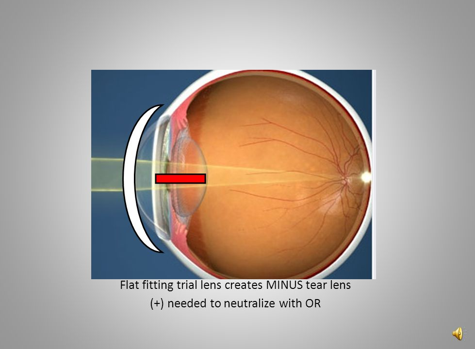Flat fitting trial lens creates MINUS tear lens
