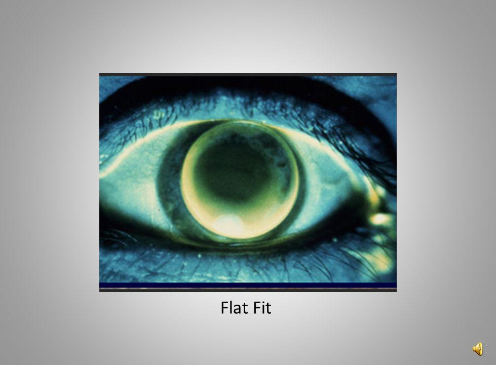 Flat Fit