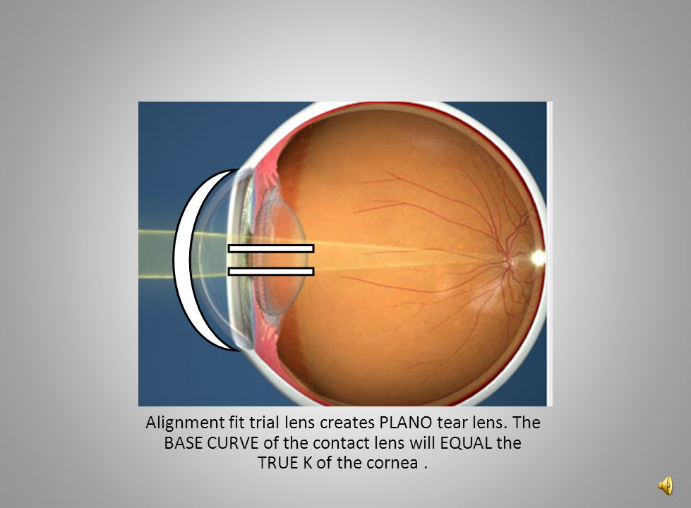 Alignment fit trial lens creates PLANO tear lens