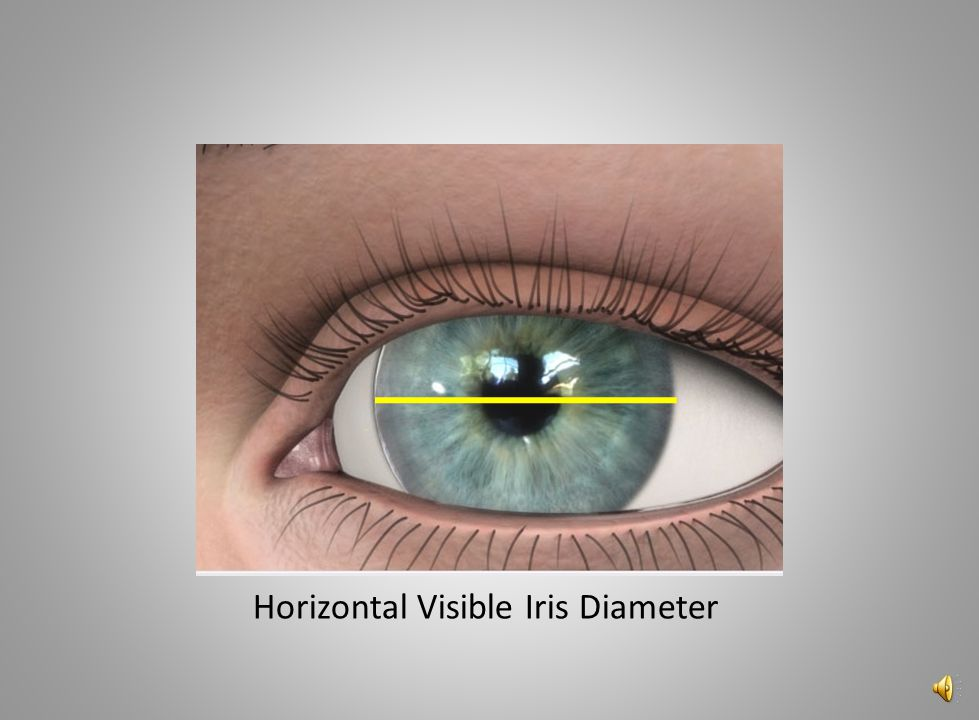 Horizontal Visible Iris Diameter