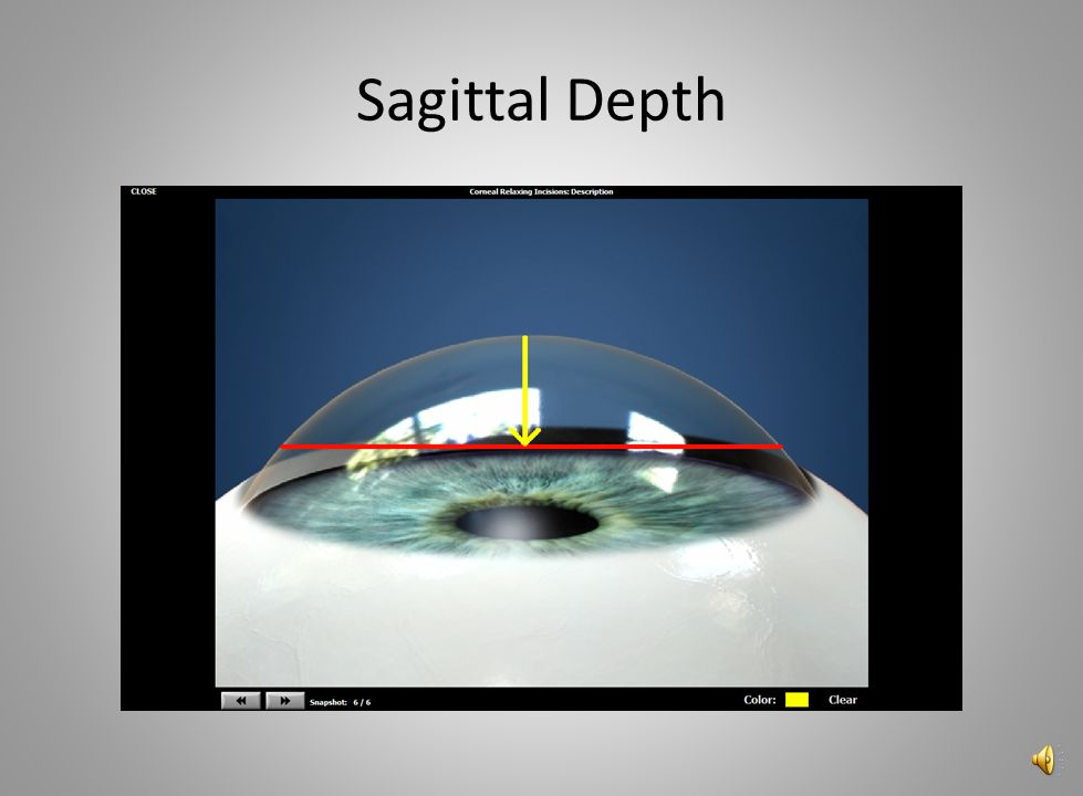 Sagittal Depth