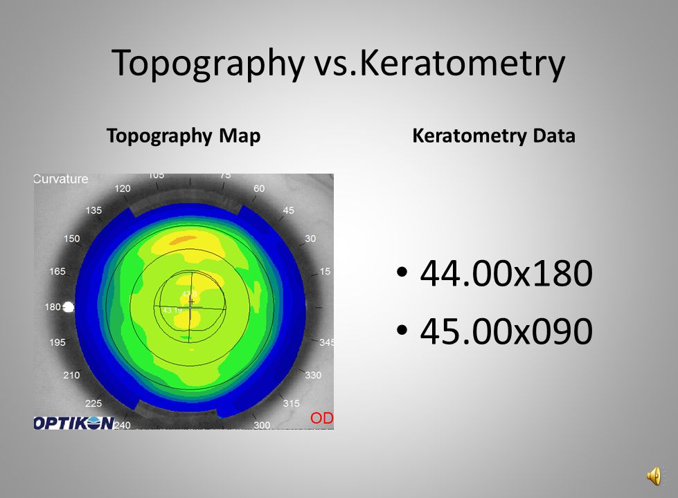 Topography vs.Keratometry