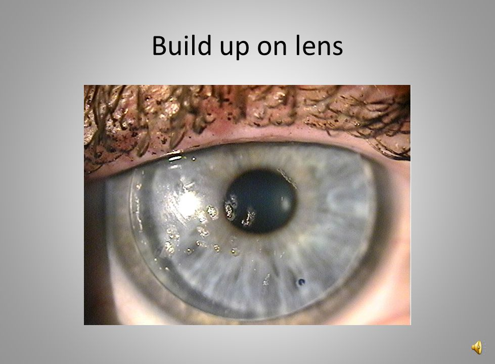 Build up on lens