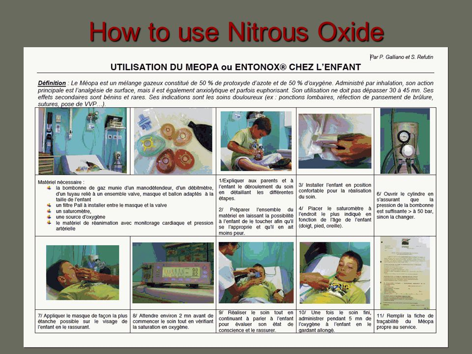 How to use Nitrous Oxide