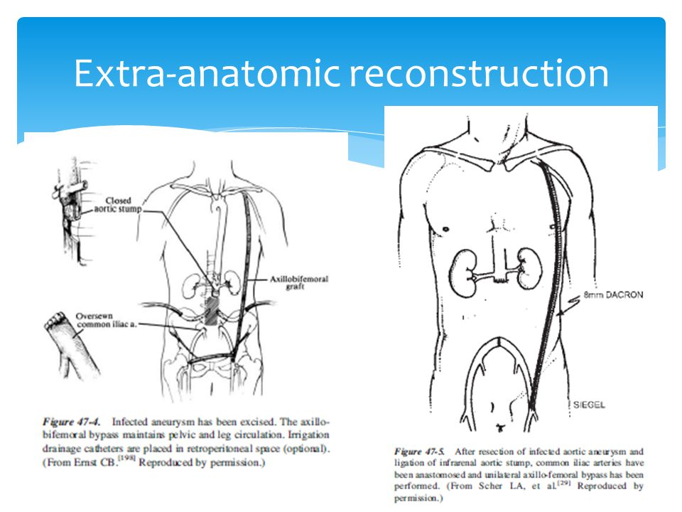 Extra-anatomic reconstruction