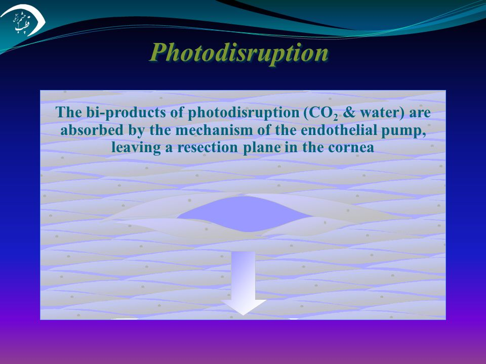 Photodisruption