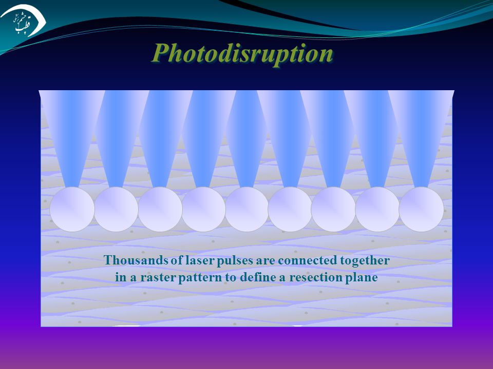 Photodisruption Thousands of laser pulses are connected together in a raster pattern to define a resection plane.