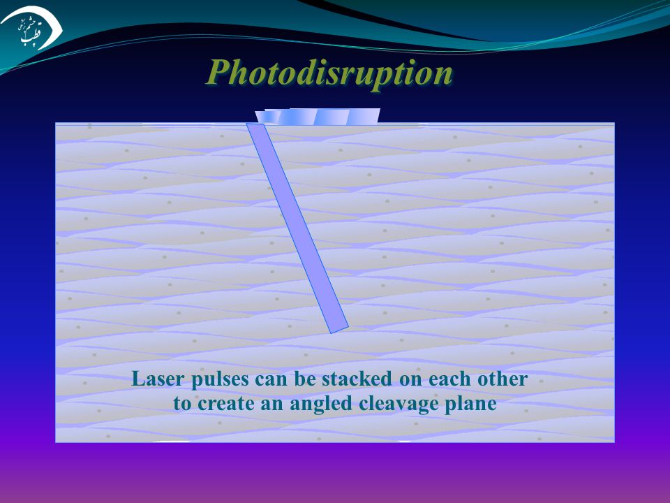 Photodisruption Laser pulses can be stacked on each other to create an angled cleavage plane