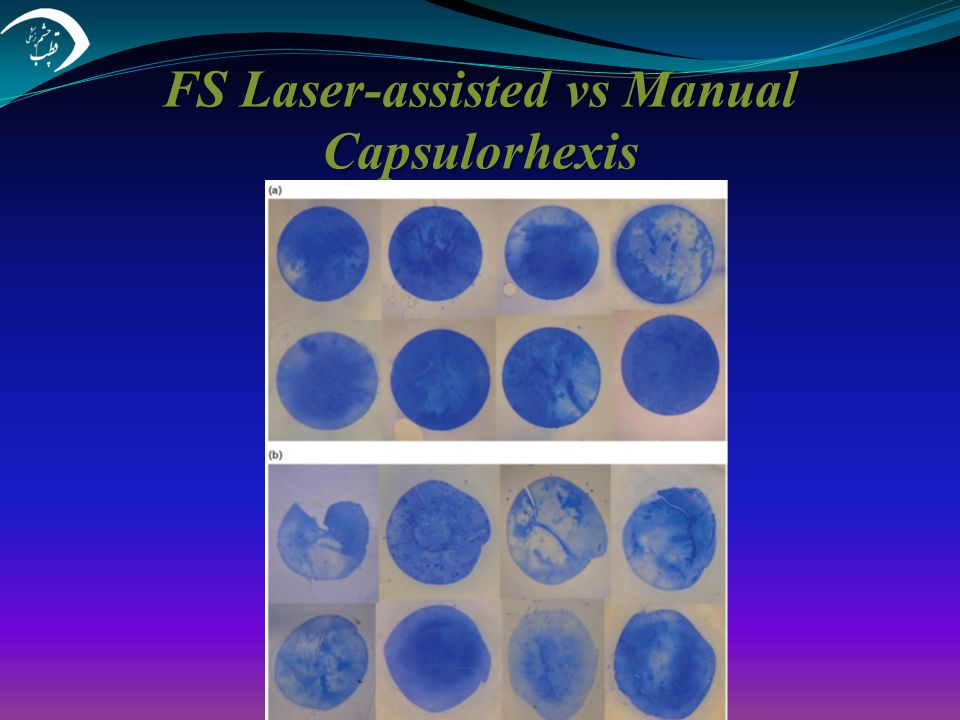 FS Laser-assisted vs Manual Capsulorhexis