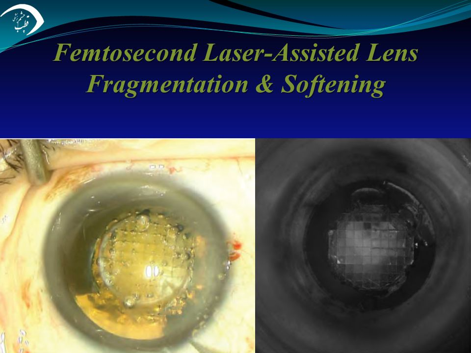 Femtosecond Laser-Assisted Lens Fragmentation & Softening