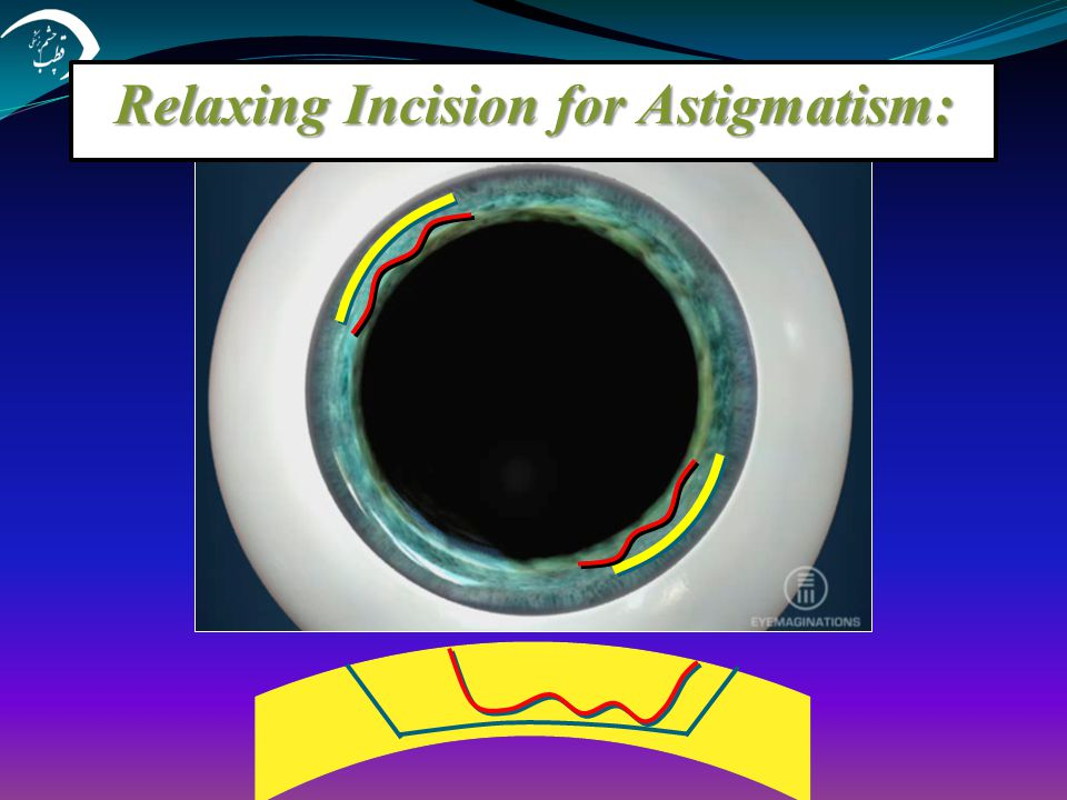 Relaxing Incision for Astigmatism: