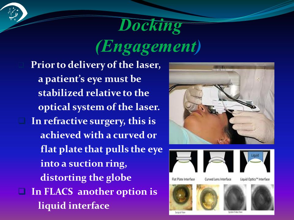 Docking (Engagement) a patient's eye must be