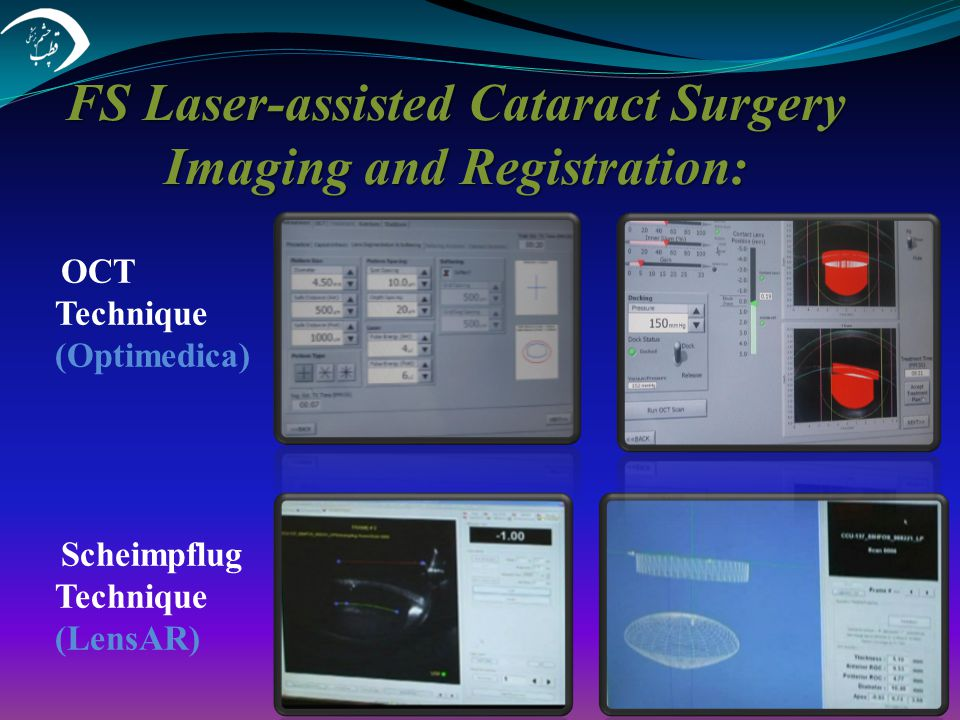 FS Laser-assisted Cataract Surgery Imaging and Registration: