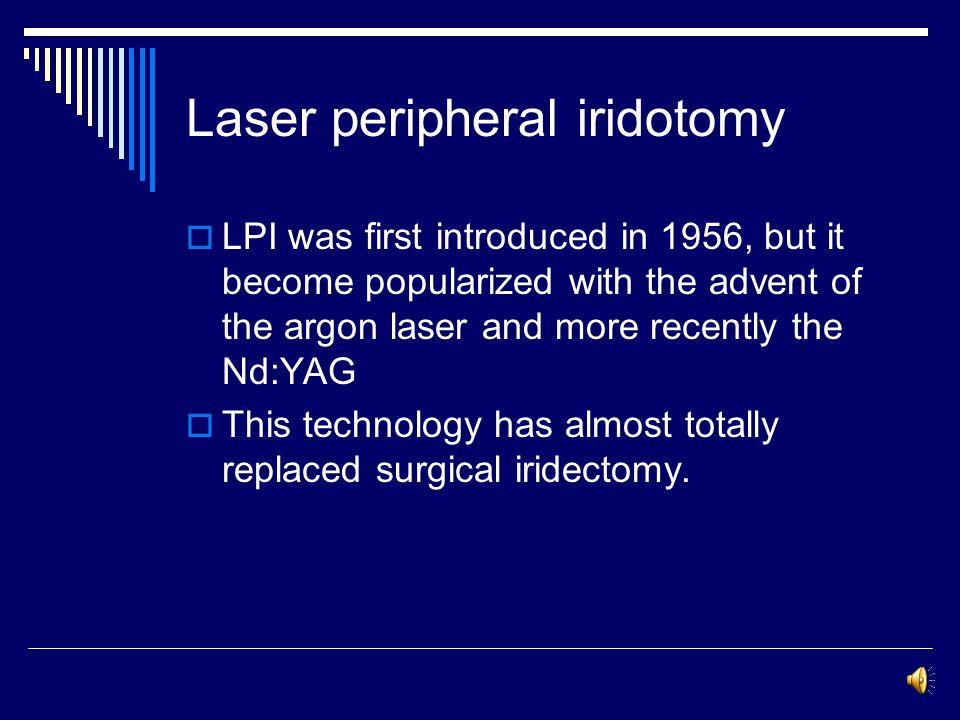 Laser peripheral iridotomy