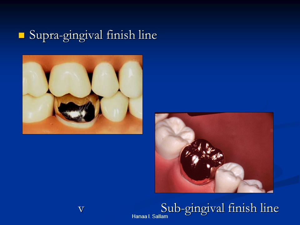 Supra-gingival finish line