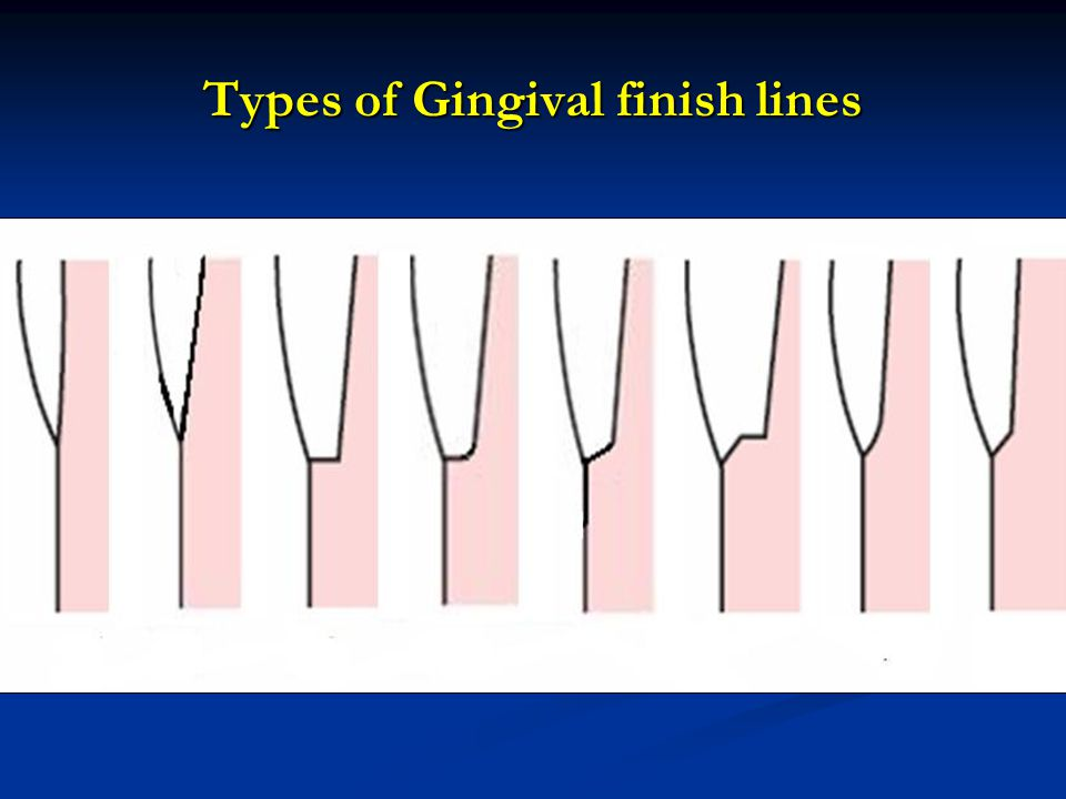 Types of Gingival finish lines
