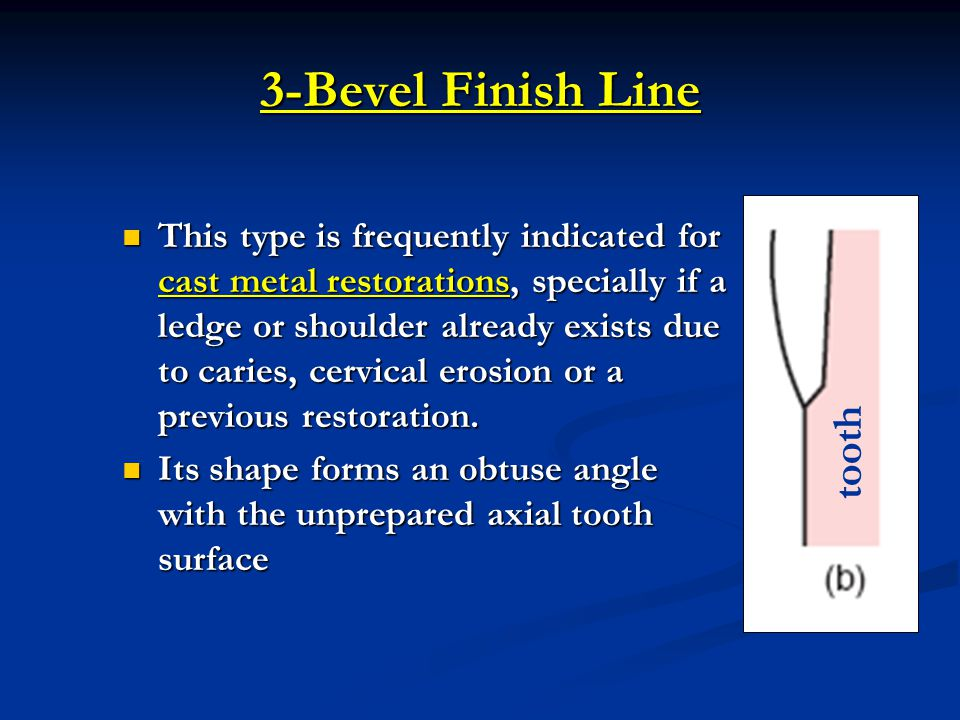 3-Bevel Finish Line tooth