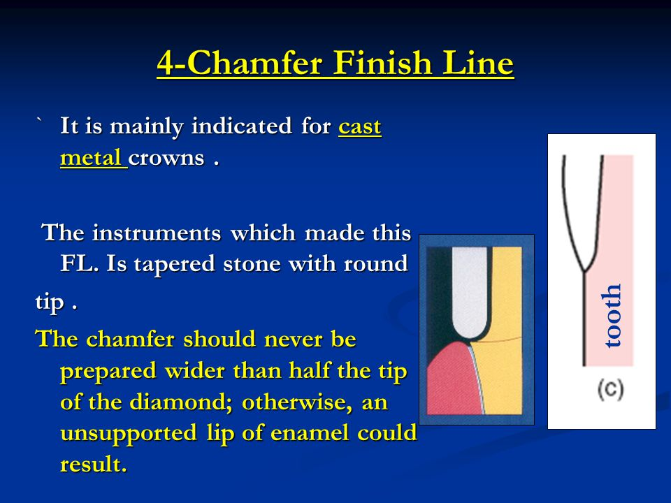 4-Chamfer Finish Line tooth