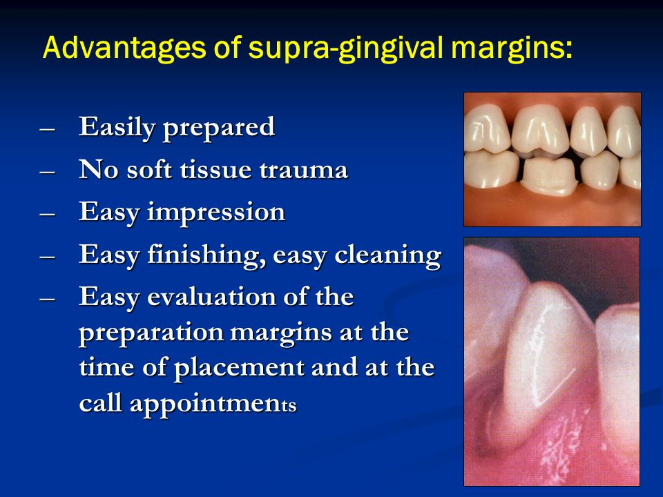 Advantages of supra-gingival margins: