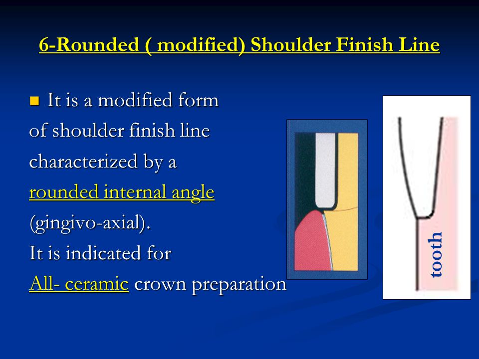 6-Rounded ( modified) Shoulder Finish Line
