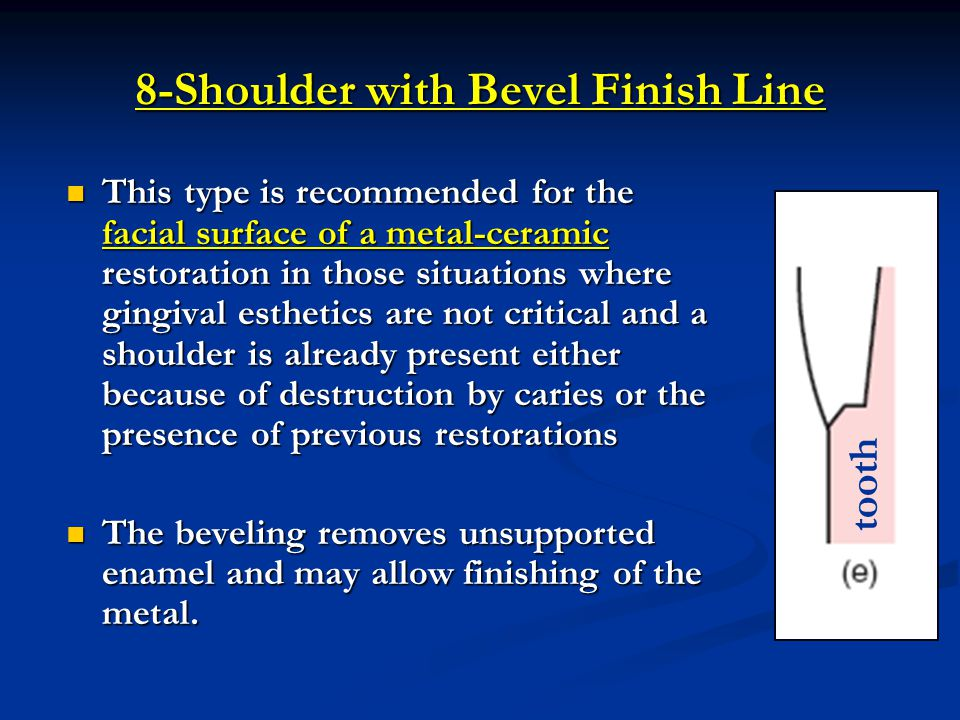 8-Shoulder with Bevel Finish Line