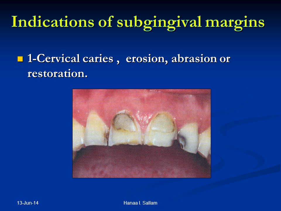 Indications of subgingival margins