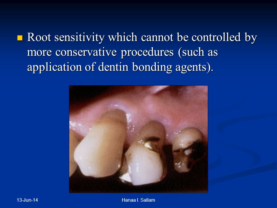 Root sensitivity which cannot be controlled by more conservative procedures (such as application of dentin bonding agents).