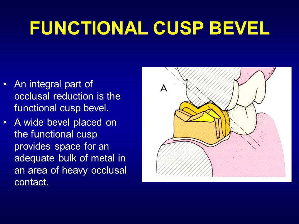 FUNCTIONAL CUSP BEVEL An integral part of occlusal reduction is the functional cusp bevel.
