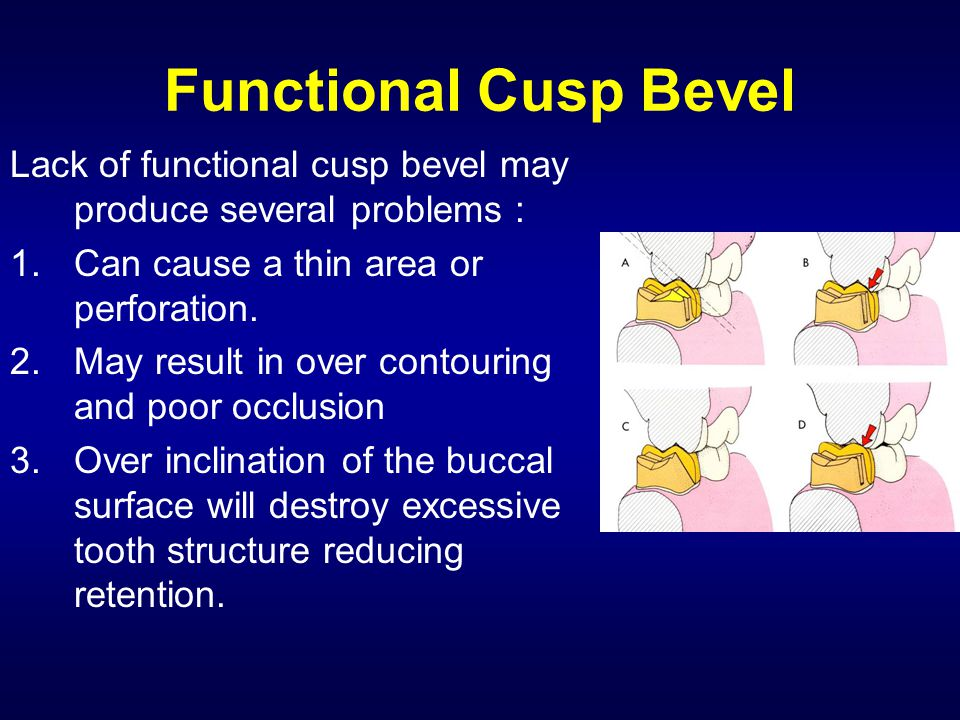 Functional Cusp Bevel Lack of functional cusp bevel may produce several problems : Can cause a thin area or perforation.