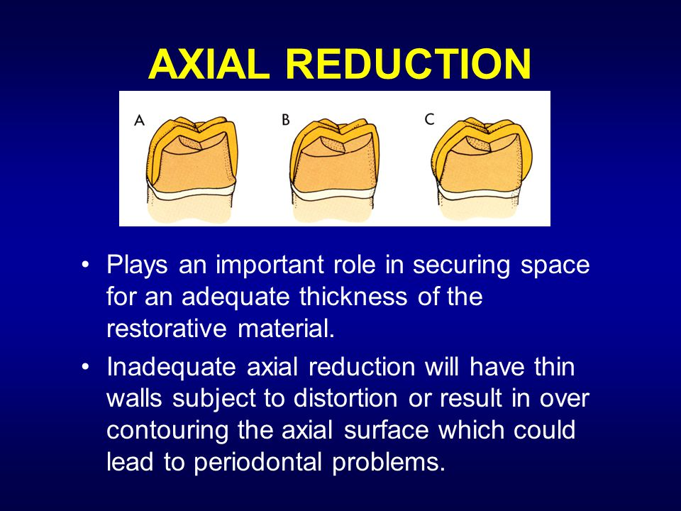 AXIAL REDUCTION Plays an important role in securing space for an adequate thickness of the restorative material.