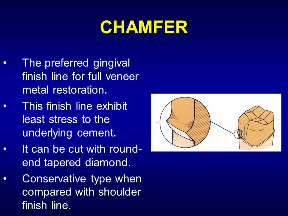 CHAMFER The preferred gingival finish line for full veneer metal restoration. This finish line exhibit least stress to the underlying cement.