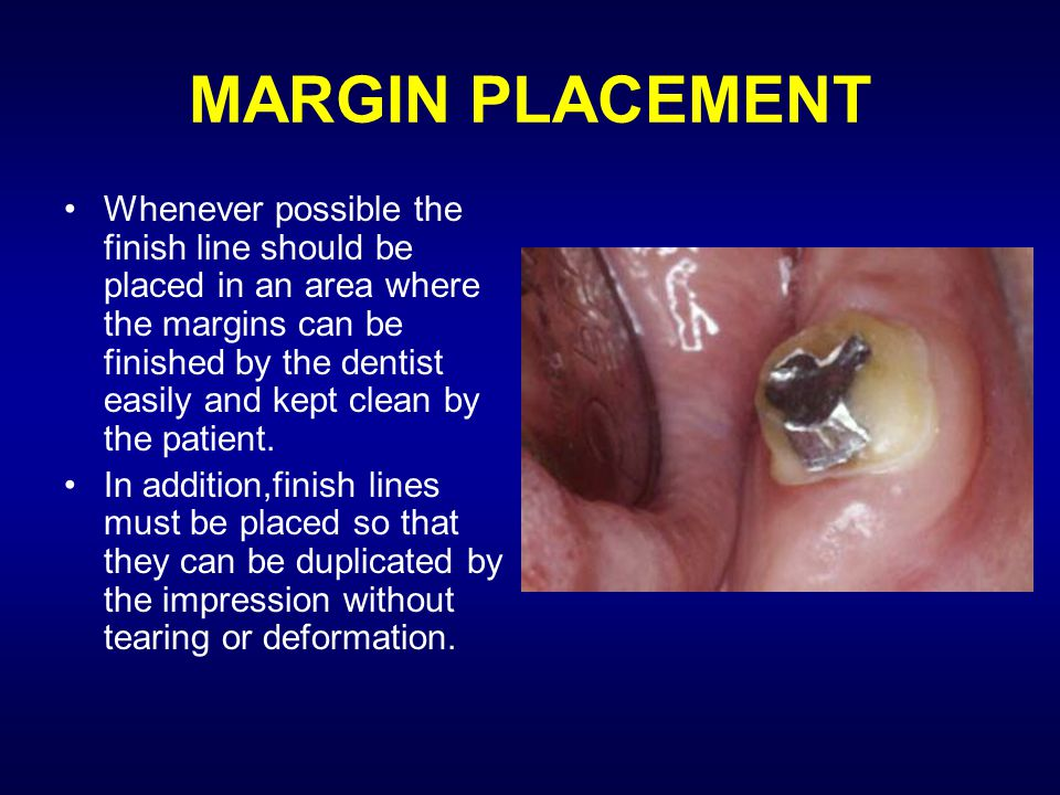 MARGIN PLACEMENT