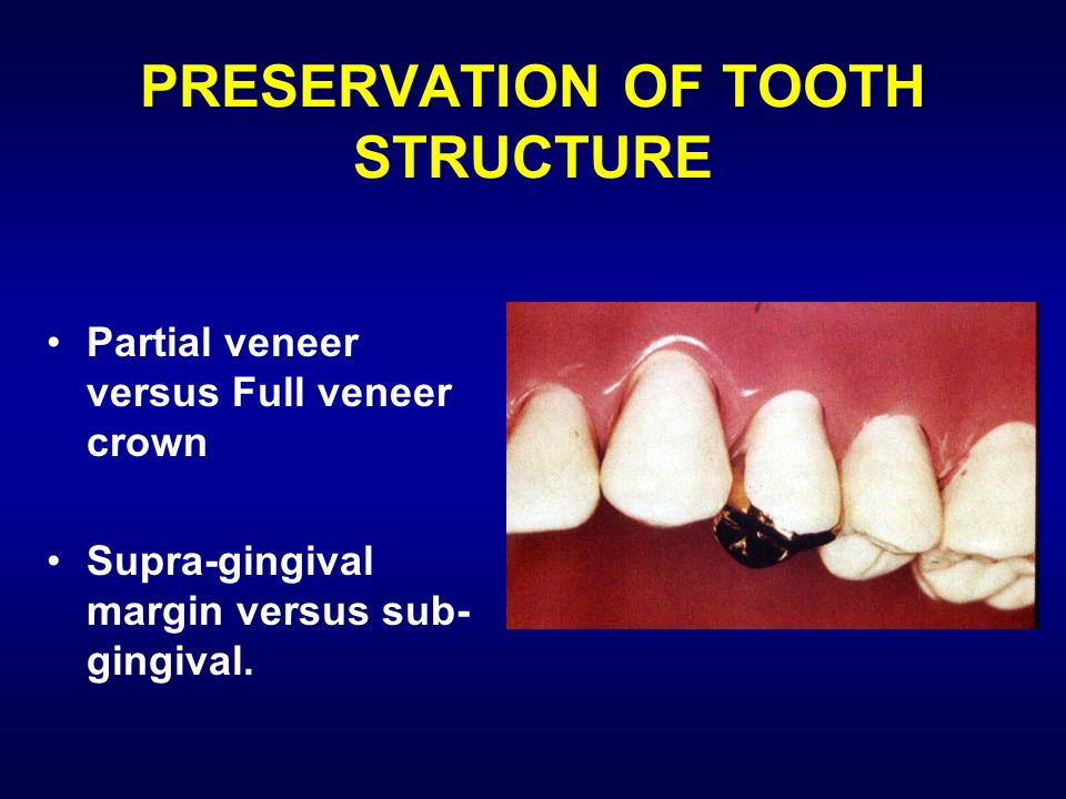 PRESERVATION OF TOOTH STRUCTURE