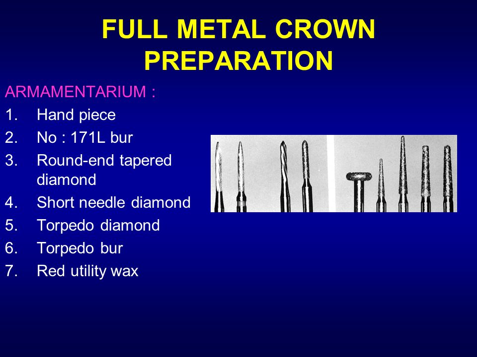 Principles Of Tooth Preparation Pp Ppt Video Online