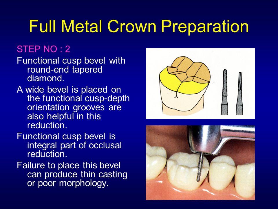 Full Metal Crown Preparation