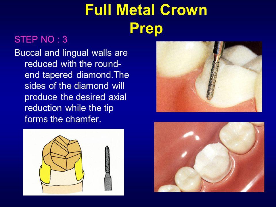 Full Metal Crown Prep STEP NO : 3